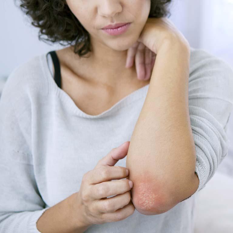 Is it possible to control psoriasis? We tell you all about this skin condition