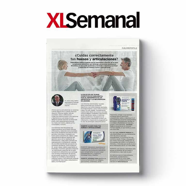 XL SEMANAL | ¿Cuidas correctamente tus huesos y articulaciones?